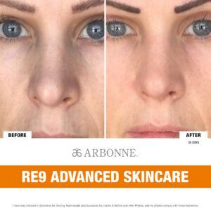 Before and After RE9 Advanced Skincare (Woman)