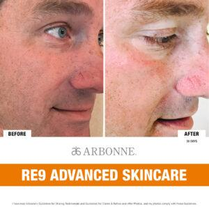 Before and After RE9 Advanced Skincare (Man)